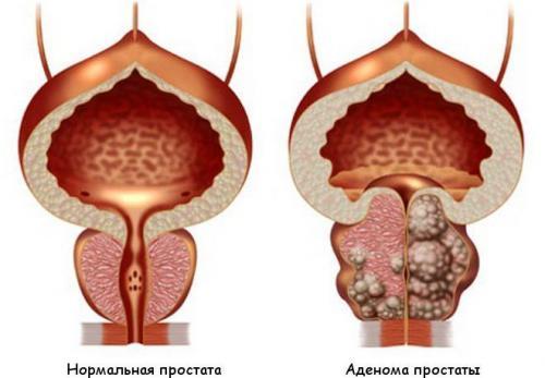 Повышенный тестостерон у мужчин плюсы. Последствия гормонального дисбаланса