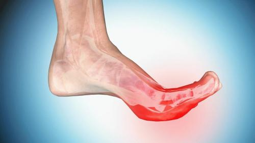 Как избавиться от судороги в ногах по ночам. Почему возникают ночные судороги?