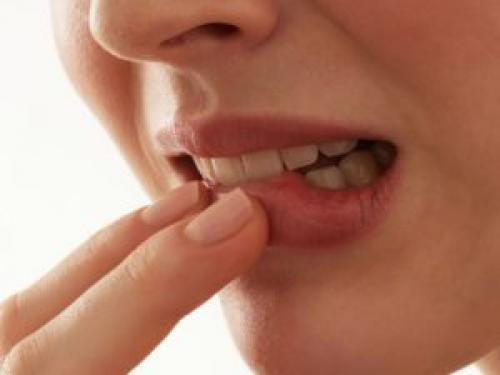 Пекут губы, как лечить. Хейлит и другие болезни провоцирующие боль и жжение губ