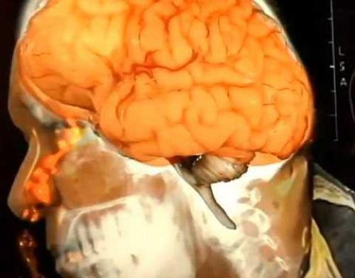 Можно ли высморкать мозг. Американец мозгом сморкался.