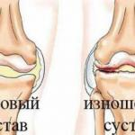 Почему этот рецепт при боли в суставах поможет?